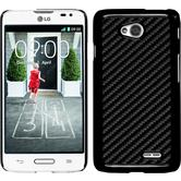 Hardcase for LG L70 carbon optics black