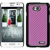 Hardcase for LG L70 carbon optics hot pink