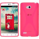 Silicone Case for LG L80 Dual X-Style hot pink
