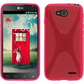 Silicone Case for LG L90 Dual X-Style hot pink