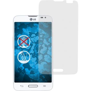 4 x LG L70 Protection Film Anti-Glare