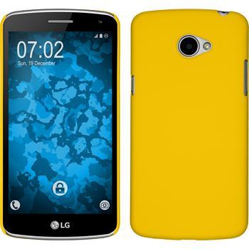 Hardcase für LG K5 gummiert gelb
