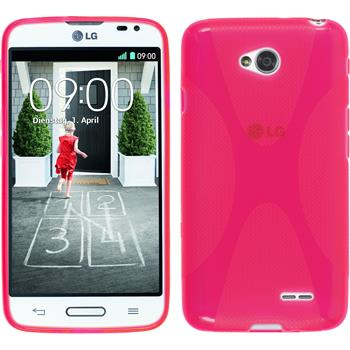 Silicone Case for LG L70 X-Style hot pink